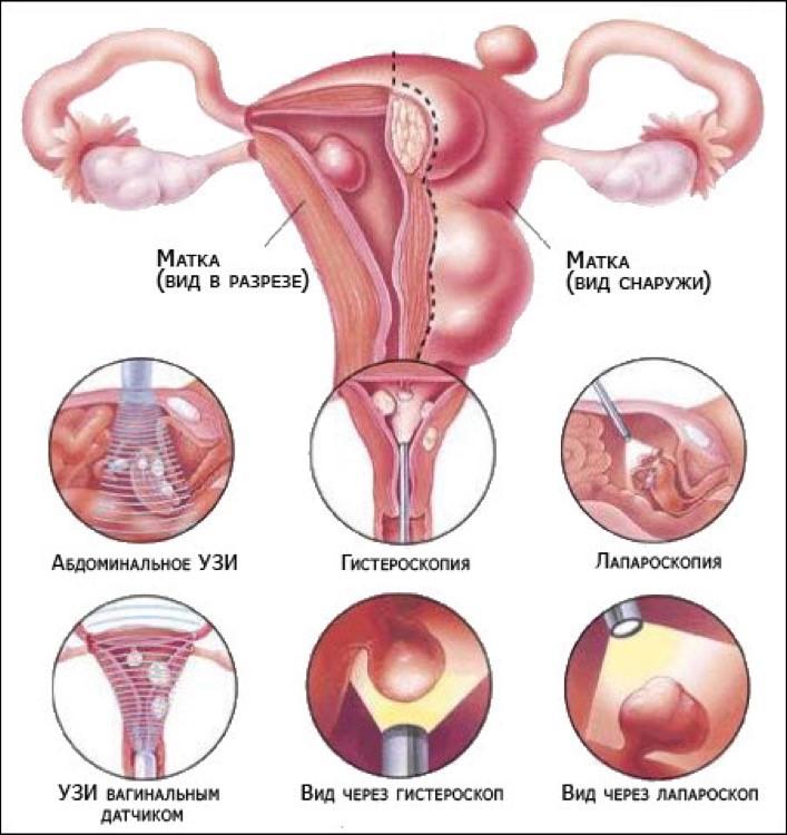 диагностика эндоцервицита 2